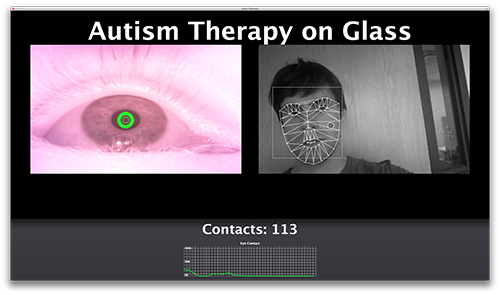 Autism Therapy on Glass Image #2