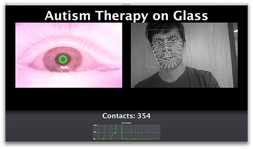 Autism Therapy on Glass Image #3